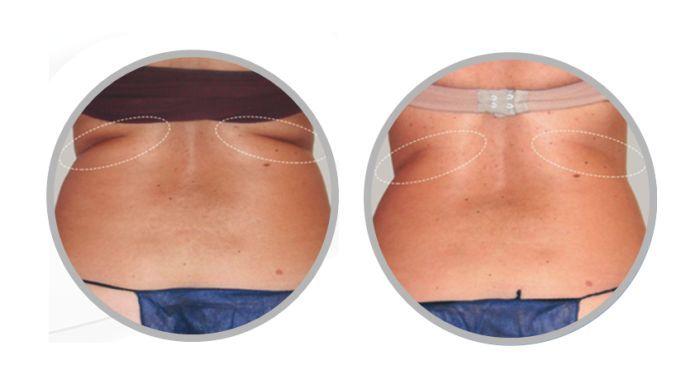 Photo of TEI behandling for en slankere figur